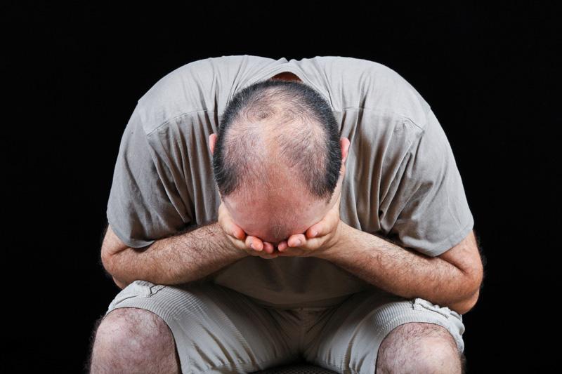 Với đàn ông, hói đầu là ác mộng khủng khiếp.  Ảnh:  INT