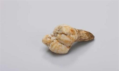 nguyen-nhan-khien-quai-vat-king-kong-bi-tuyet-diet-1