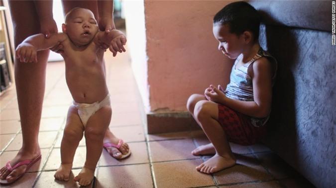 Bo Y te huong dan cach phong virus Zika an nao nguoi