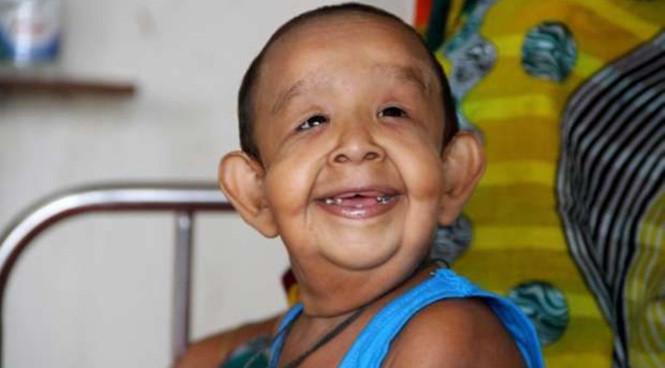 Bé Bayezid Shikdar mới 4 tuổi nhưng mắc chứng bệnh lạ, trông giống như một ông lão.