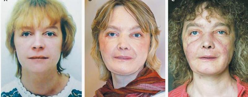 Hình ảnh của Isabelle Dinoire (từ trái sang phải) trước khi bị chó tấn công, sau khi được phẫu thuật một năm và sau khi được phẫu thuật 18 tháng.