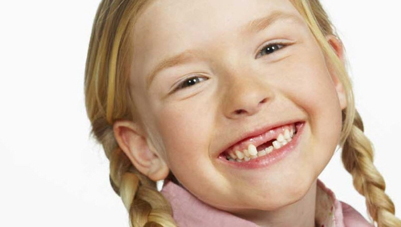 Bé sợ rằng sau khi nhổ răng thì bé sẽ trông rất xấu. Ảnh minh họa.