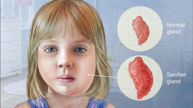 Bệnh quai bị thường xảy ra ở trẻ em.