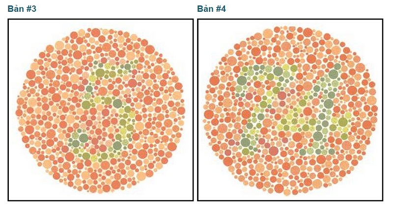 Một bài kiểm tra bệnh mù màu. Nếu bạn nhìn thấy số 5 và số 24 thì bạn không bị mù màu.