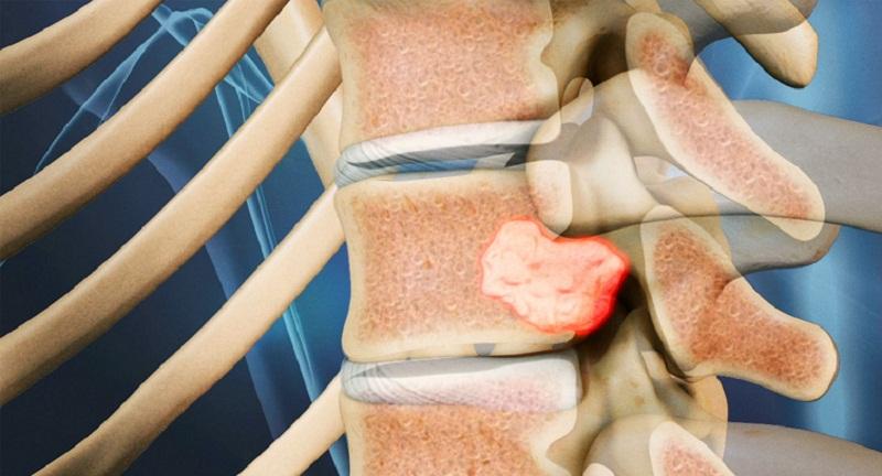 Hỉnh ảnh của ung thư xương cột sống.