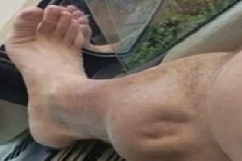 """""""Ớn lạnh"""" với cảnh chuột rút đầy đau đớn của chàng trai sau khi tập gym. Một chàng trai đến từ Mỹ, Angel Bermudez đã ghi lại cảnh anh bị chuột rút khủng khiếp ở bắp chân sau khi rời khỏi phòng tập gym. (CHI TIẾT)"""