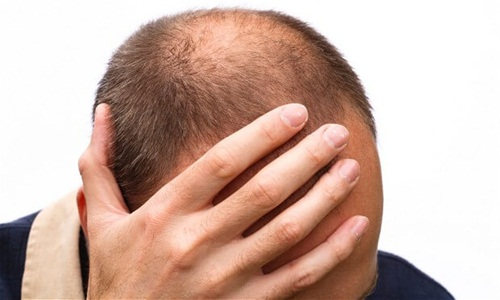 Chất PTD-DMB có thể ngăn ngừa rụng tóc và thúc đẩy tóc mọc lại. Ảnh: Har Vokse.