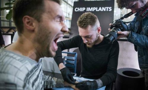 Một người đàn ông đang nhịn đau để cấy chip dưới da tay. Ảnh: AFP.