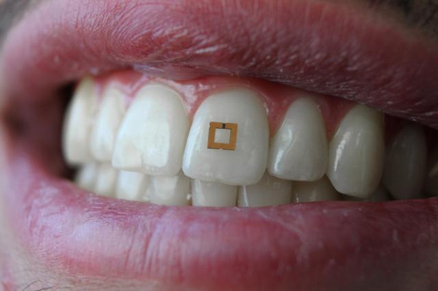 Cảm biến gắn trên răng có thể theo dõi lượng đường, rượu và muối bạn đưa vào miệng hàng ngày. Ảnh: Fiorenzo Omenetto