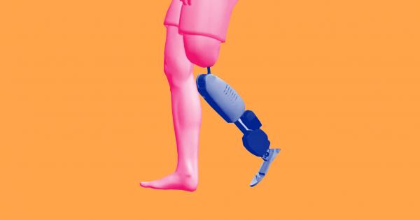 Kỹ thuật đột phá mới mang lại hy vọng cho người tàn tật phải sử dụng chi giả. Ảnh: Futurism