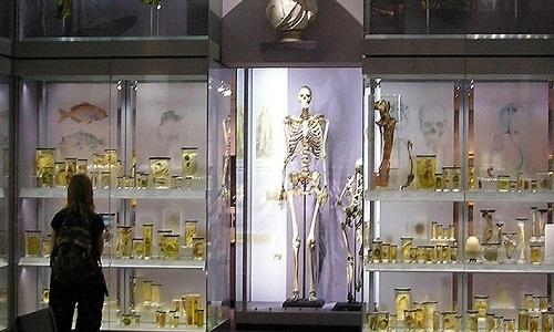 Bộ xương của Charles Byrne trưng bày trong bảo tàng Hunterian. Ảnh: Science Alert.