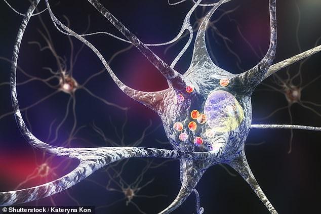 Loại bỏ phân tử USP13 giúp não làm sạch các thể lewy - lớp lắng đọng protein độc hại tích tụ bên trong các tế bào thần kinh (được minh họa bằng các vòng tròn màu đỏ trong ảnh) là nguyên nhân dẫn đến bệnh Parkinson - Ảnh : Shutterstock