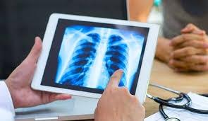Các chất ức chế p110α có thể được sử dụng thay thế trong điều trị ung thư phổi - Ảnh : Abbvie com