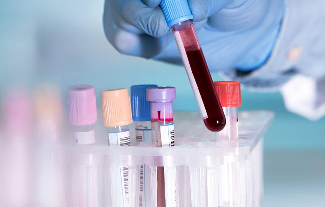 Lấy mẫu máu để phục vụ cho xét nghiệm