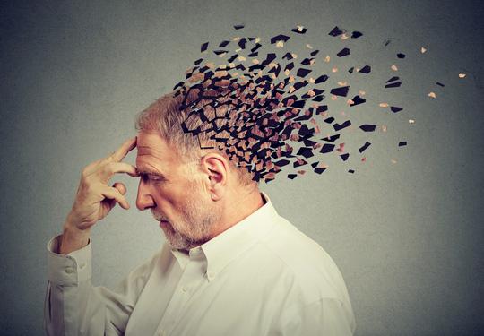 Alzheimer hiện chưa có thuốc chữa - ảnh minh họa từ internet
