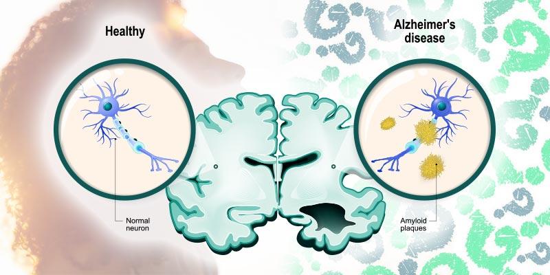 Sơ đồ biểu thị não của người mắc bệnh Alzheimer. Nguồn: Cannabis.info