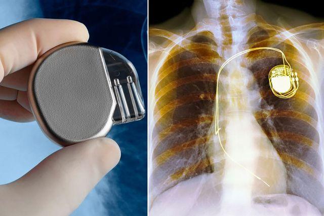 Máy tạo nhịp tim truyền thống đang được sử dụng khá phổ biến.