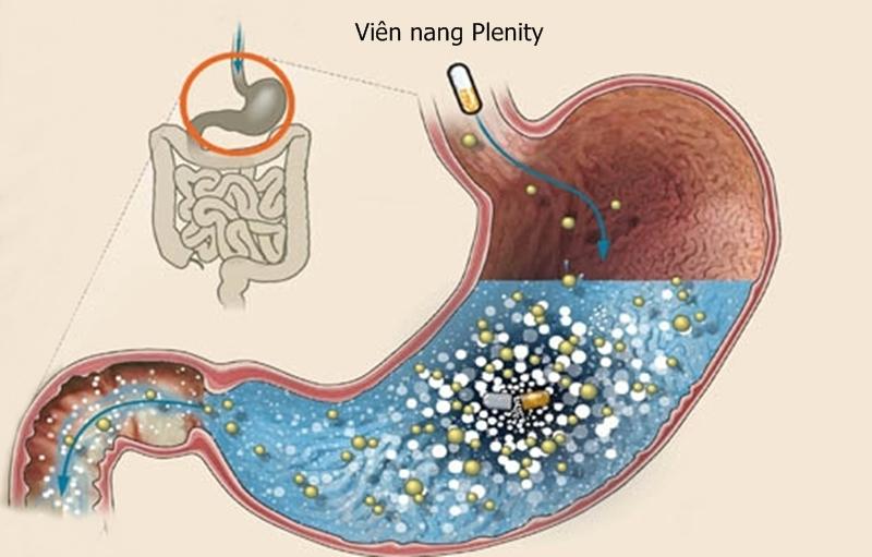 Viên nang Plenity giải phóng hàng nghìn hạt hút nước trong dạ dày. Ảnh: Gelesis