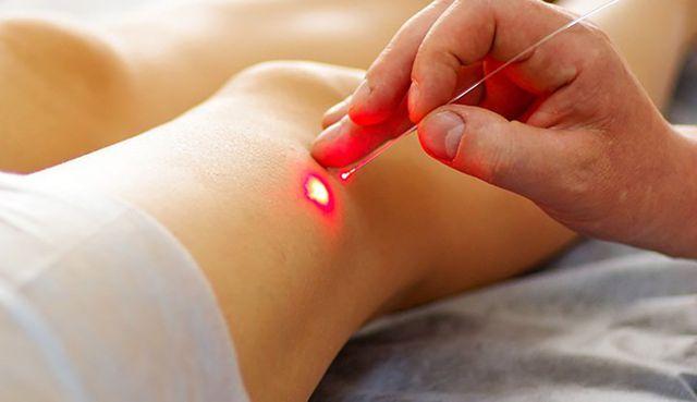 Công nghệ laser mới mang lại hi vọng chữa bệnh ung thư tốt hơn.