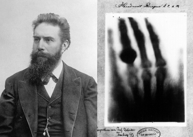 Chân dung nhà vật lý Rontgen và bức ảnh X-quang chụp bàn tay vợ của ông. Ảnh: Wikimedia.