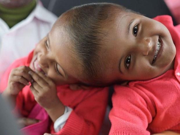 Hai bé song sinh dính liền đầu, ảnh chụp ngày 5/1/2019. (Nguồn: AFP)