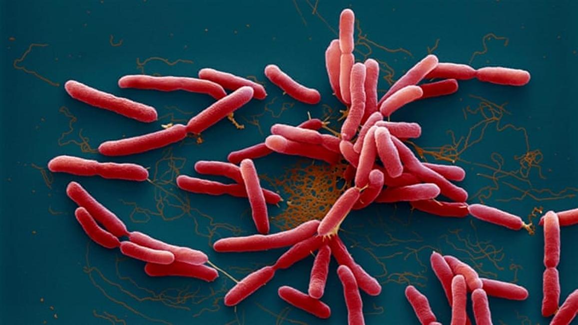 Vi khuẩn Burkholderia pseudomallei gây bệnh Whitmore. Ảnh: aljazeera