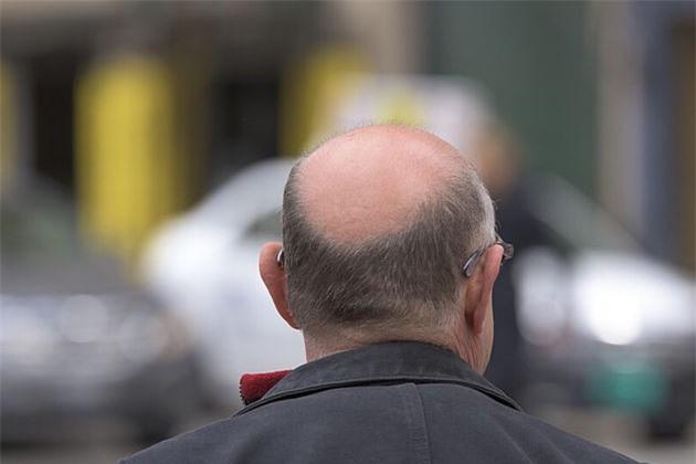 Nghiên cứu cho thấy ô nhiễm không khí có thể khiến bạn bị hói đầu - Ảnh 1.
