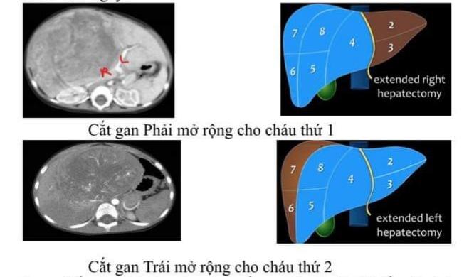 Hình ảnh mô phỏng các phần gần phẫu thuật