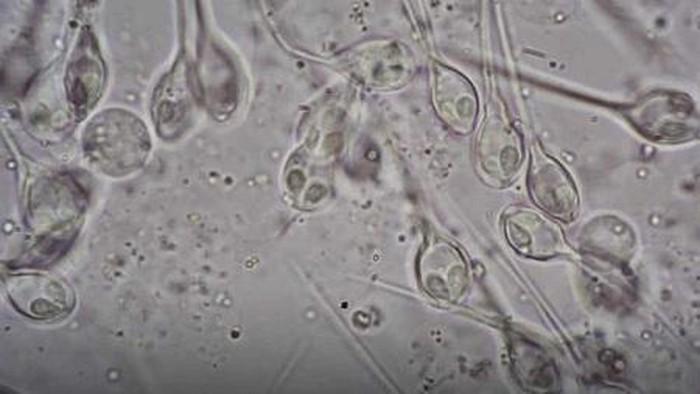 Henneguya salminicola nhìn dưới kính hiển vi. Ảnh: Live Science.