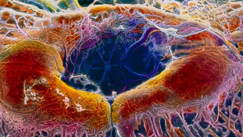 Võng mạc của con người: một liệu pháp CRISPR lần đầu tiên đã được đưa trực tiếp vào mắt người. Prof. P. Motta/Dept. of Anatomy/University La Sapienza of Rome/SPL.