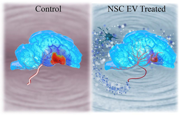 Exosome thúc đẩy phục hồi đáng kể trong đột quỵ