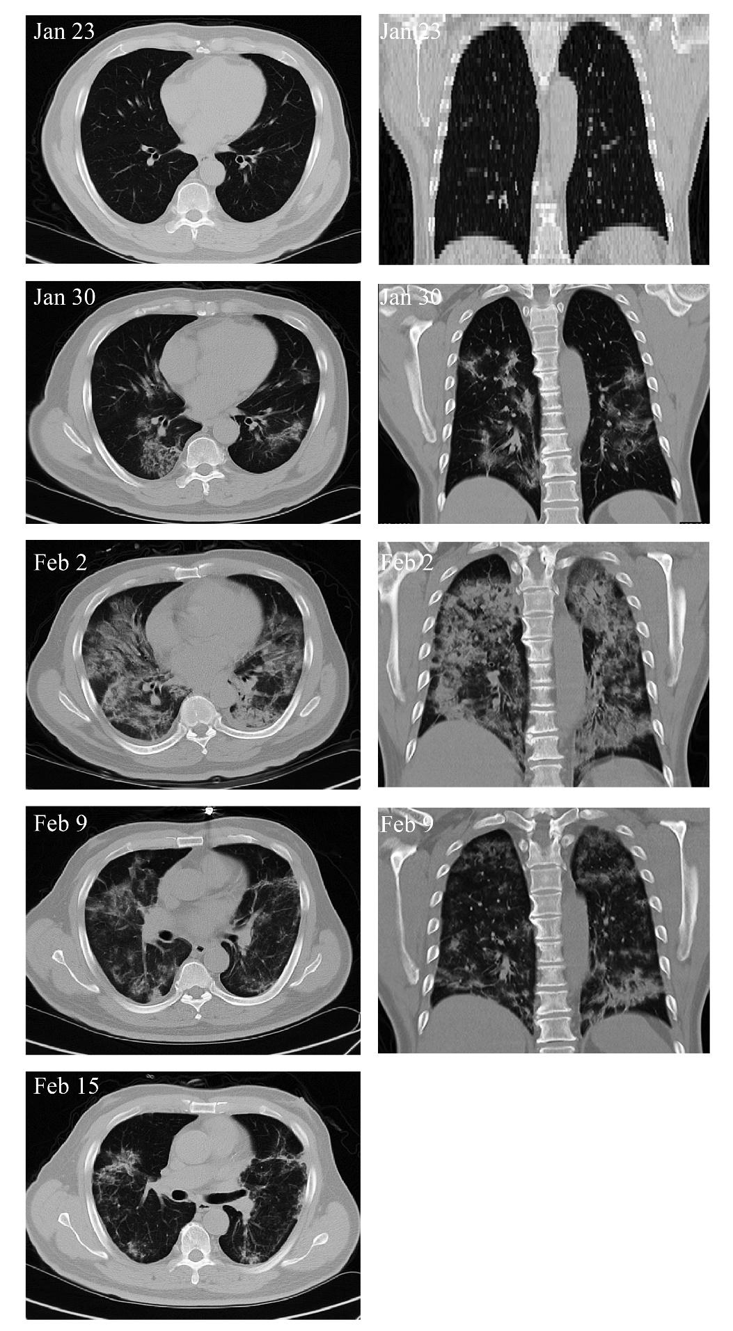 Hình ảnh chụp cắt lớp vi tính (CT) ngực của bệnh nhân Covid-19.