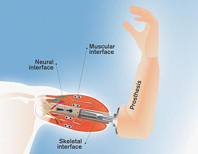 Biểu đồ minh họa cơ chế tương tác giữa cánh tay giả với các dây thần kinh và cơ bắp của cơ thể.