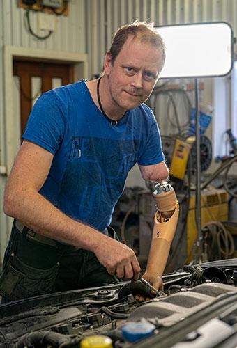 Một bệnh nhân đã sống cùng cánh tay giả được vài năm.