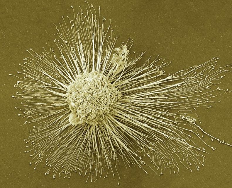 Tế bào cơ tim có nguồn gốc từ các tế bào gốc vạn năng cảm ứng (iPS) đang được thử nghiệm ở người. Ảnh: Deerinck, NCMIR / SPL