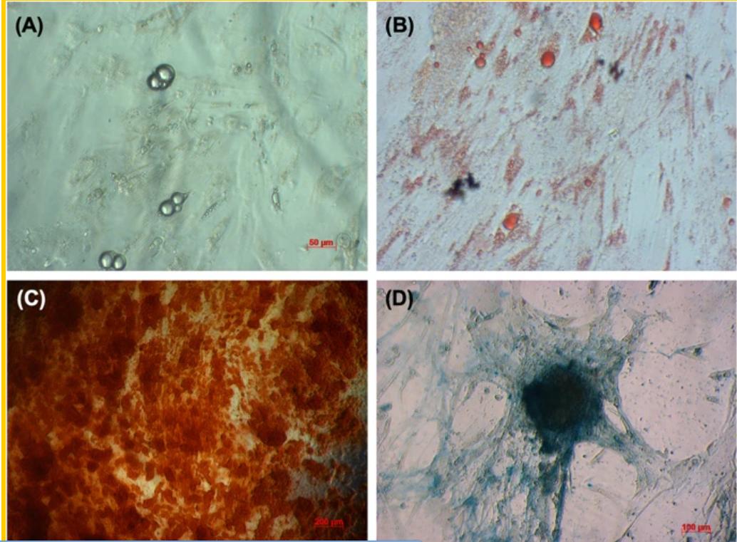 Tế bào gốc dây rốn được biệt hóa thành công thành tế bào mỡ, nguyên bào xương. Ảnh: Nhóm NC.