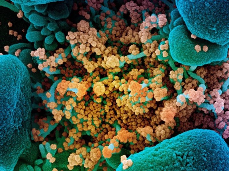 Hình ảnh kính hiển vi điện tử quét của các hạt coronavirus SARS-CoV-2 (màu cam) trên một tế bào (màu xanh). Ảnh: NIAID / NIH / SPL