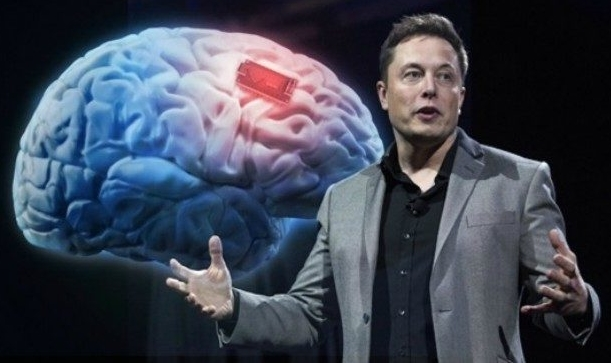 Elon Musk. Ảnh: Neuralink.