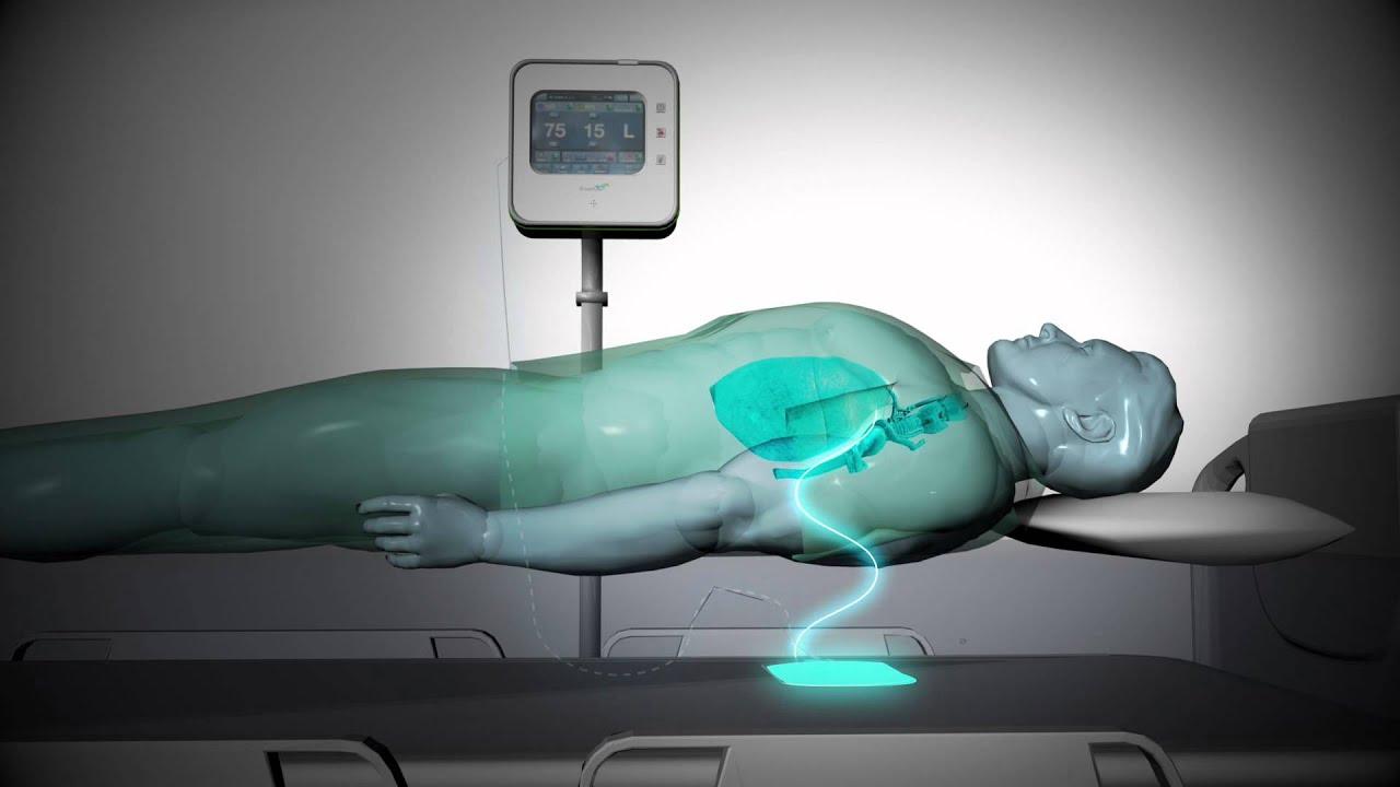 Thiết bị của EarlySense được áp dụng trong bệnh viện giúp giám sát bệnh nhân và phát hiện sớm triệu chứng