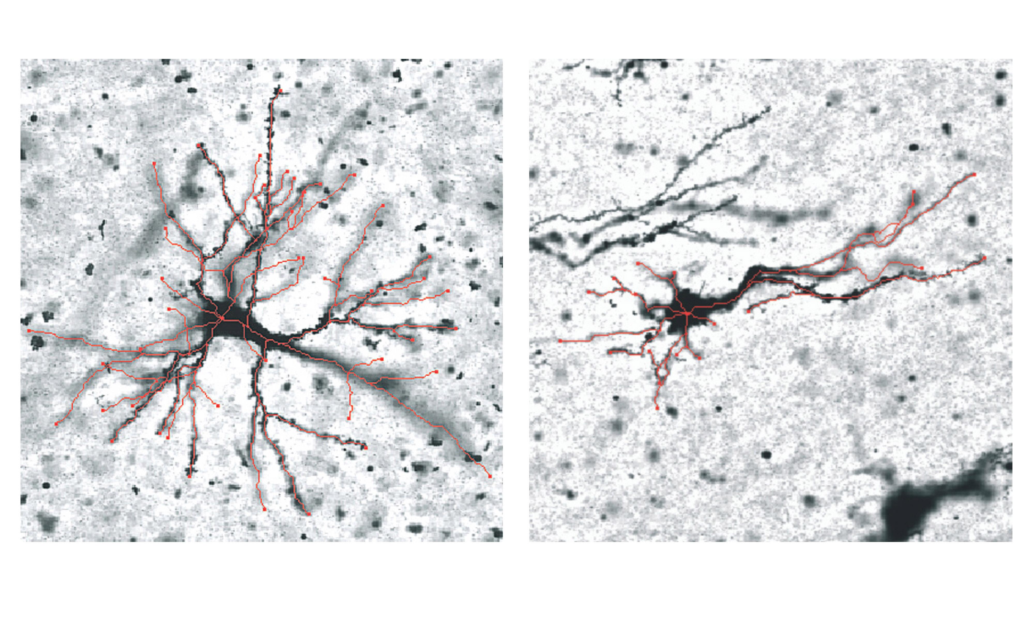 Chất xám ở nếp gấp hướng ra ngoài (trái) và nếp gấp hướng trong (phải), với những điểm khác biệt được tô màu đỏ. Nghiên cứu phát hiện ra rằng các biến thể về hình dạng nơ-ron ở những vùng này trong quá trình gấp nếp có tương quan với những khác biệt về gen. | Ảnh: RMIT