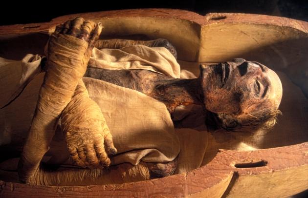 Xác ướp Pharaoh Ai Cập Rameses II (1301-1235 TCN ). Ảnh: Nature.