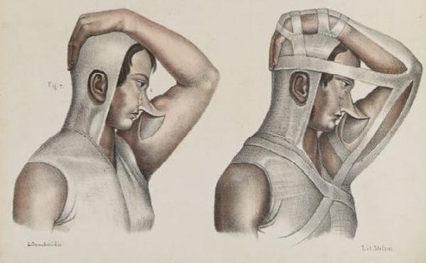 Cuốn sách Iconografia d'anatomia được xuất bản năm 1841 mô tả mũi của bệnh nhân vẫn gắn liền với phần da lấy từ cánh tay trong lúc chờ vết thương lành lại. Ảnh: Independent.