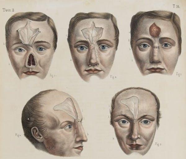 Phần da trên trán được dùng trong các ca phẫu thuật tạo hình mũi thời kỳ đầu. Ảnh: Independent.