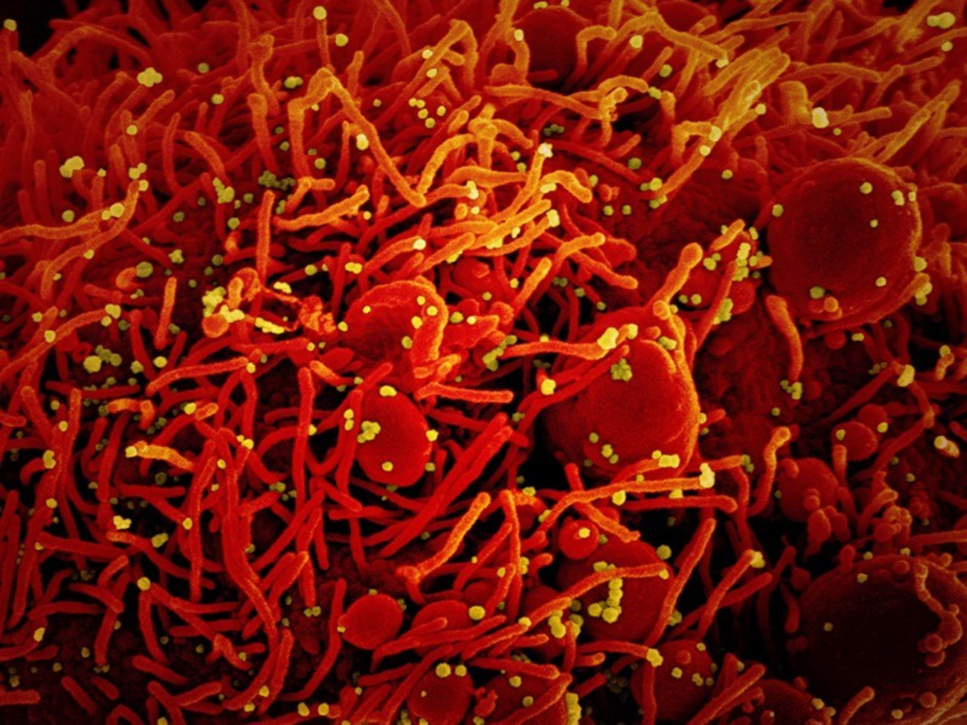 Virus SARS-CoV-2 trên tế bào chụp bằng kính hiển vi điện tử. Ảnh: NIAID / NIH / SPL