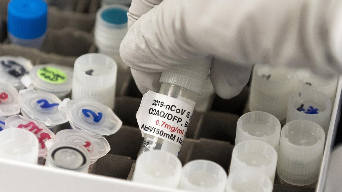 Các kỹ thuật viên xử lý các lọ trong quá trình thử nghiệm sản xuất vaccine Covid-19 của Đại học Oxford. Ảnh: Vincenzo Pinto/AFP/Getty