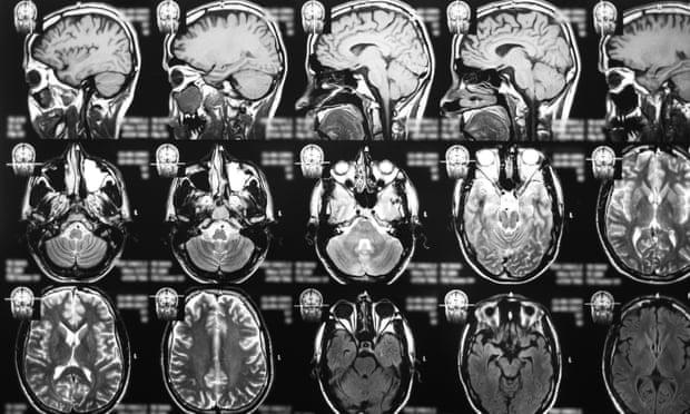 Thành tựu mới về điều trị ung thư não