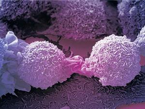 Biến đổi thành công tế bào ung thư thành tế bào thường