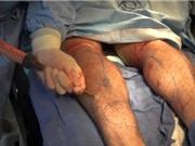 """Tìm hiểu quy trình phẫu thuật biến chân to thành """"siêu mẫu"""""""