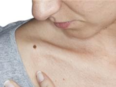 Số nốt ruồi trên tay phải dự báo nguy cơ ung thư