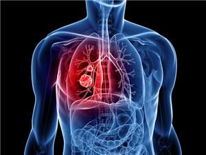 Phát hiện ung thư phổi bằng thử máu